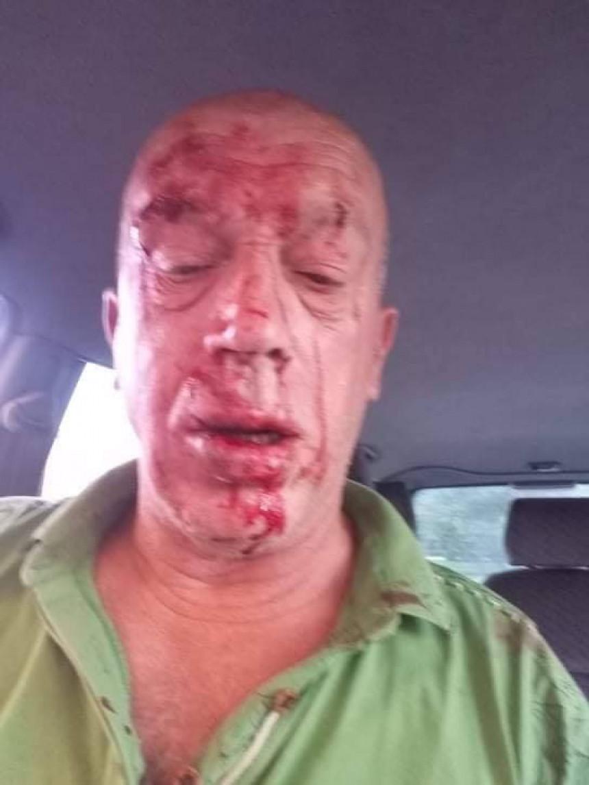 Brutalno pretučen u centru Teslića