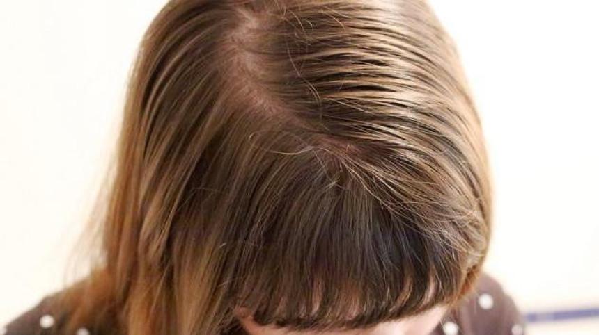 Šta kosa otkriva o zdravlju