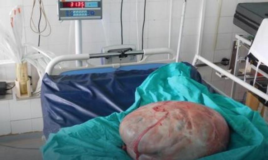Banjaluka: Odstranili tumor težak 31 kg!
