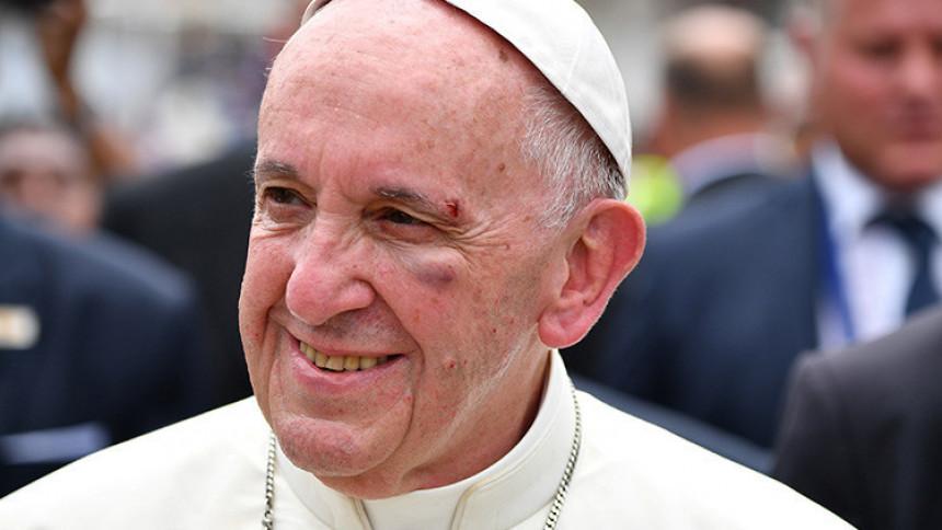 Papa povrijeđen prilikom posjete