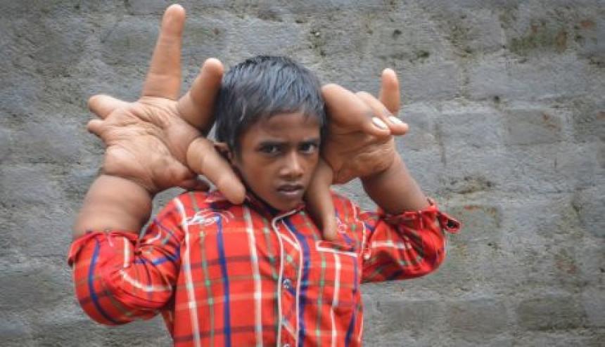 Dječak sa šakama većim od glave