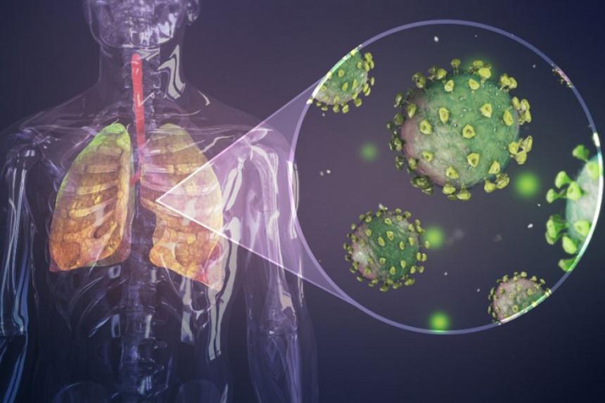 Kako izgledaju pluća napadnuta virusom korona?