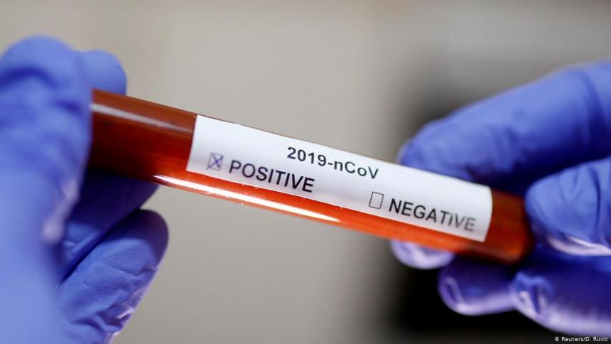 Još četiri nova slučaja zaraze virusom korona