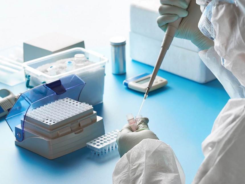 Novih 69 osoba u Srpskoj zaraženo virusom korona