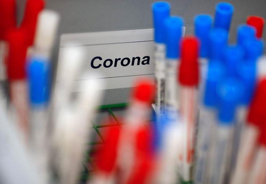 Почела производња руске вакцине против короне