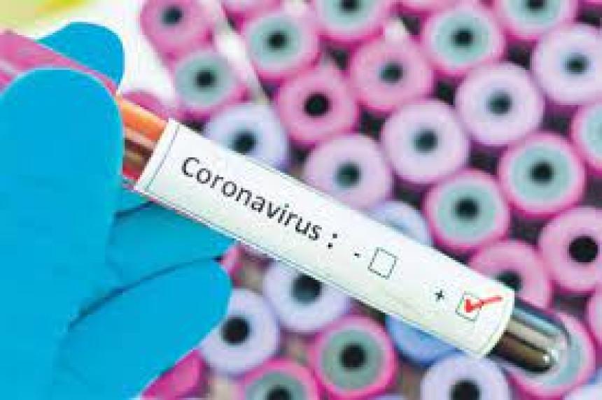 270 novozaraženih, umrlo još 11 osoba od virusa korona
