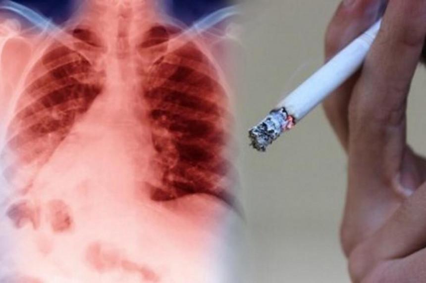 Kako da sačuvate svoja pluća
